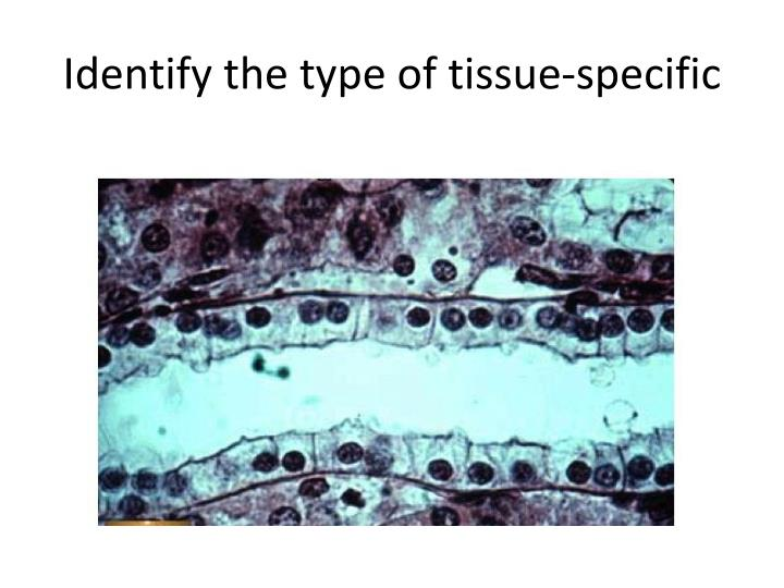 Identify the type of tissue-specific