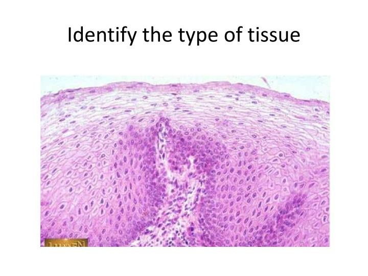 Identify the type of tissue