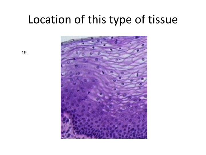Location of this type of tissue