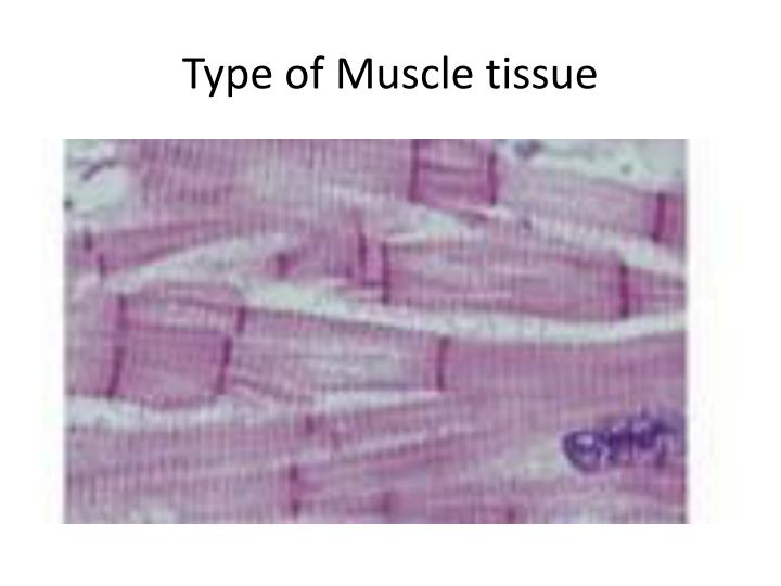 Type of Muscle tissue