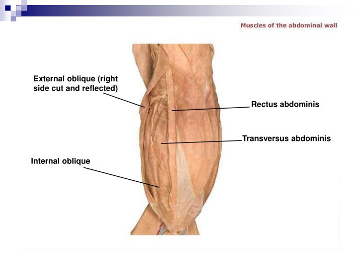 External oblique (right side cut and reflected)