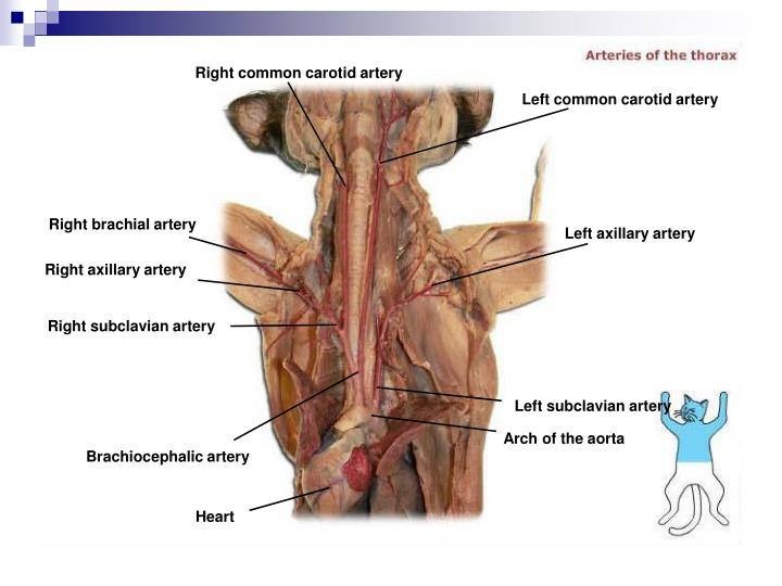 Right common carotid artery