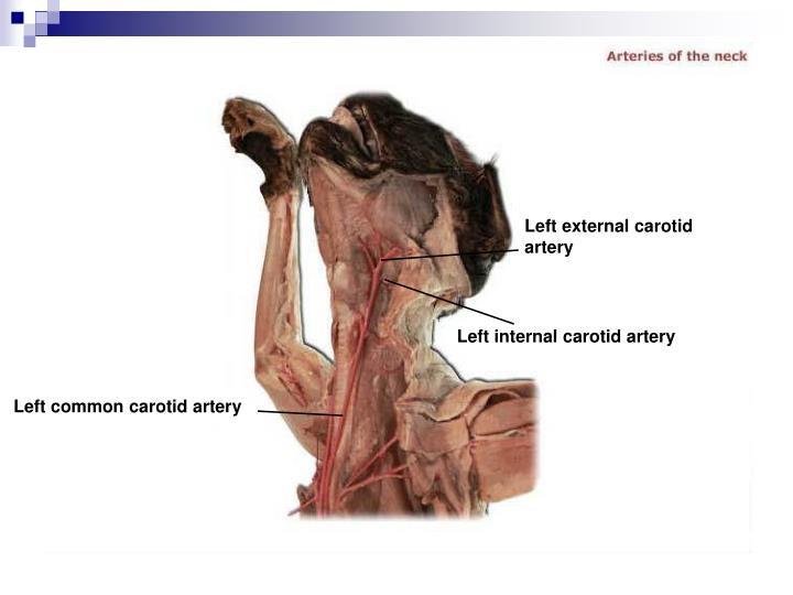 Left external carotid