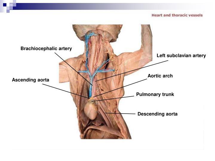 Brachiocephalic artery