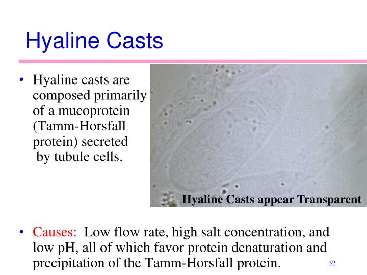 Hyaline Casts