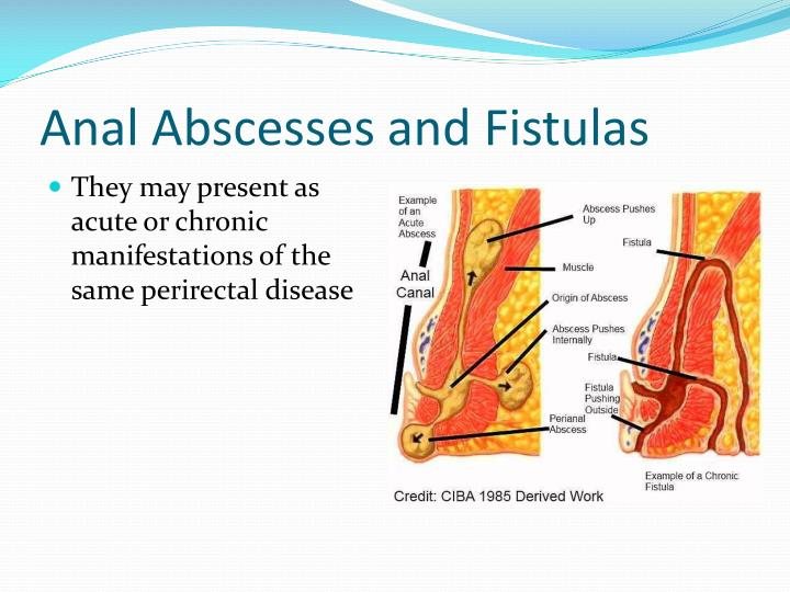 Anal Abscesses and Fistulas