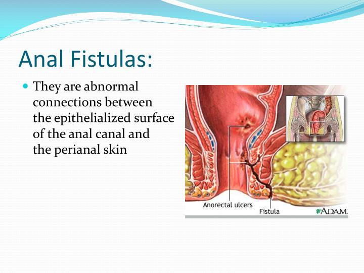 Anal Fistulas: