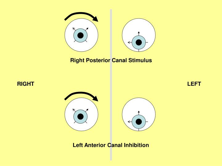 Right Posterior Canal Stimulus