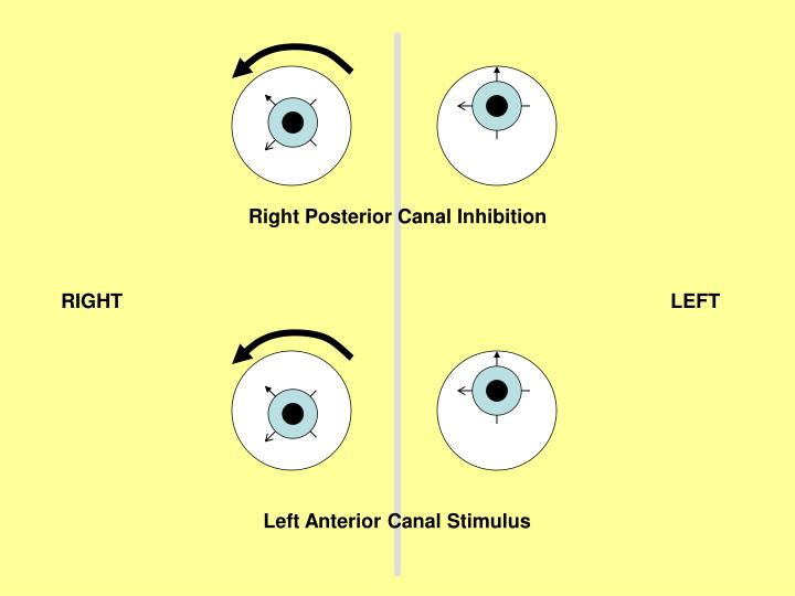 Right Posterior Canal Inhibition
