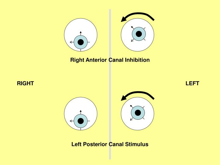 Right Anterior Canal Inhibition