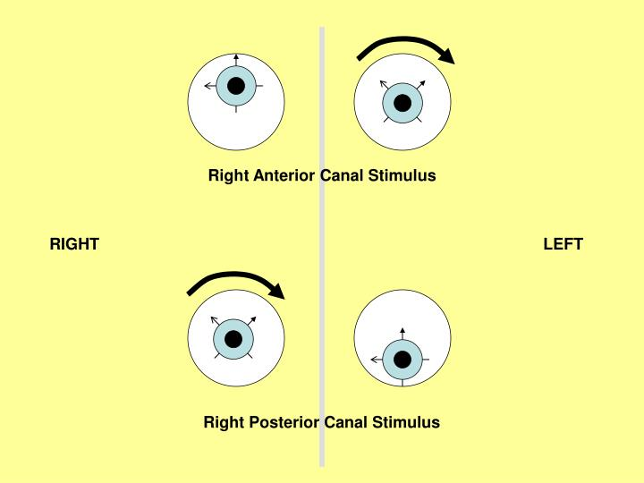 Right Anterior Canal Stimulus