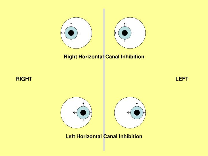 Right Horizontal Canal Inhibition