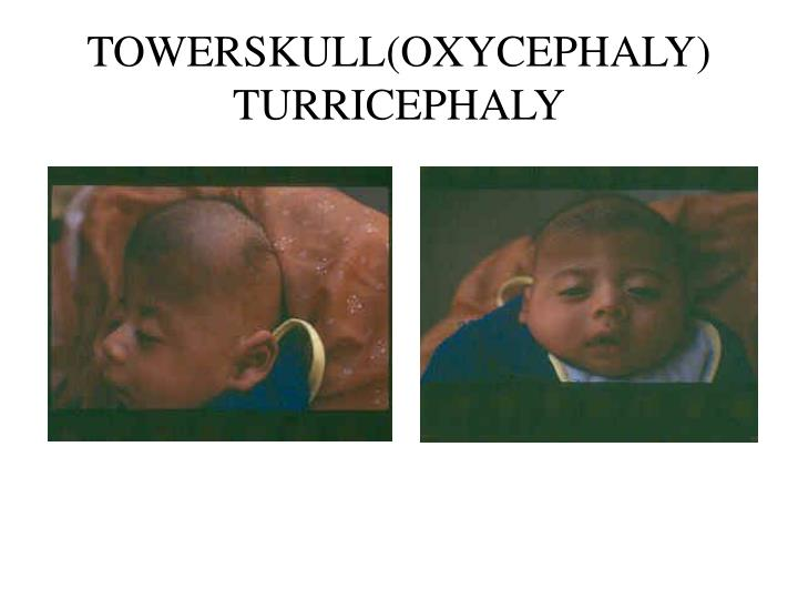 TOWERSKULL(OXYCEPHALY)