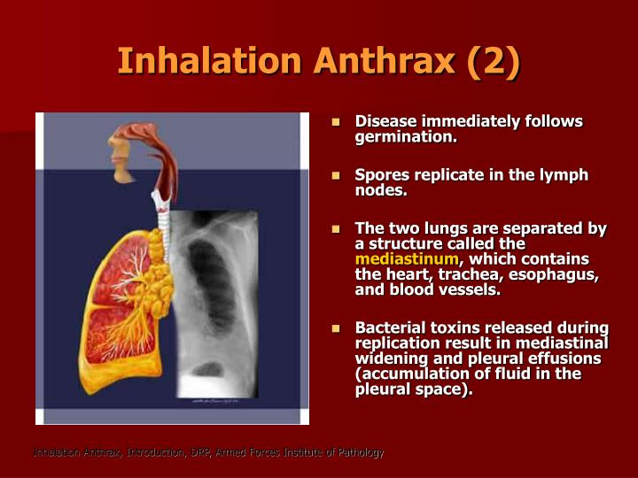Inhalation Anthrax (2)