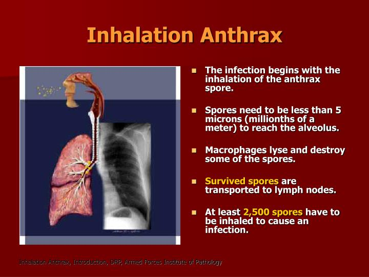 Inhalation Anthrax