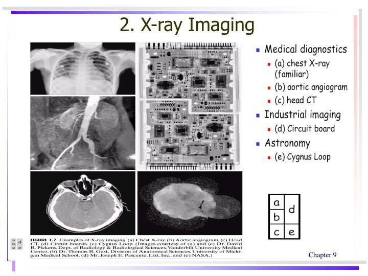 2. X-ray Imaging