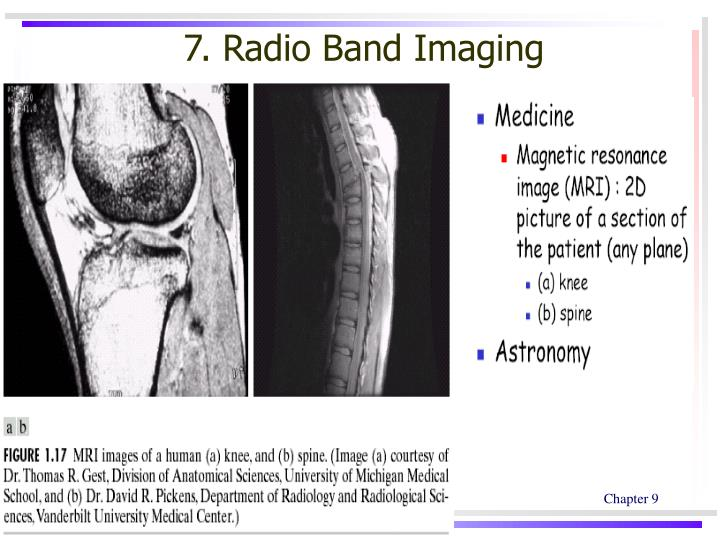 7. Radio Band Imaging