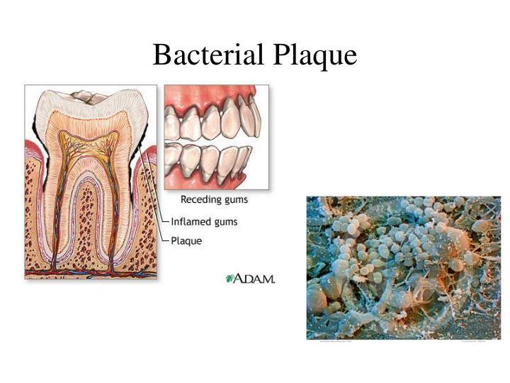 Bacterial Plaque