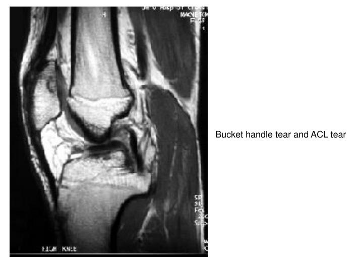 Bucket handle tear and ACL tear