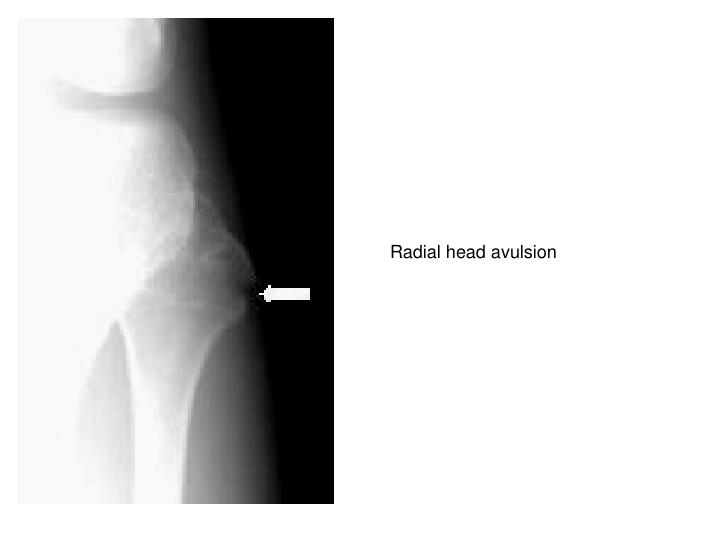Radial head avulsion