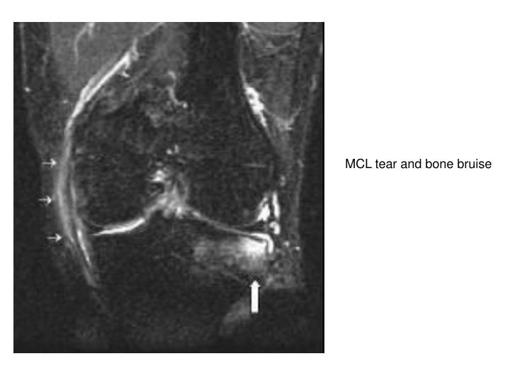 MCL tear and bone bruise