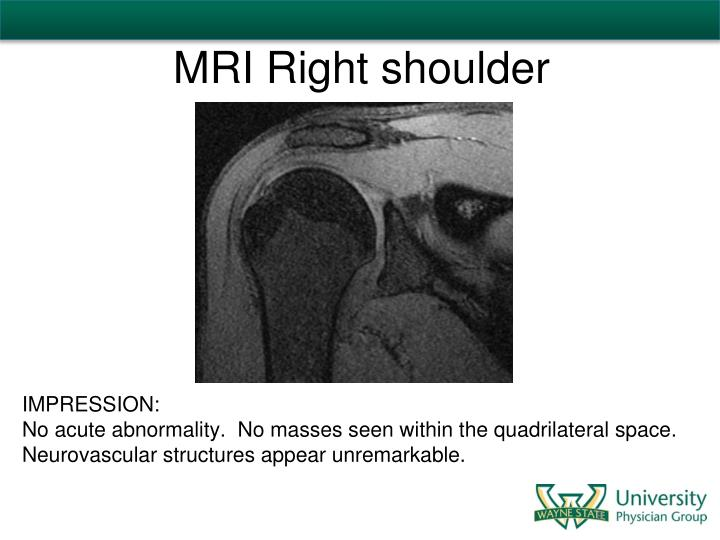 MRI Right shoulder