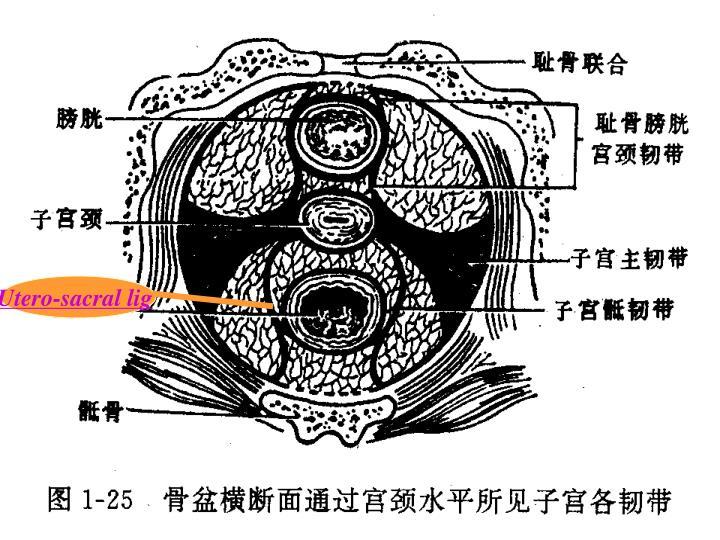 Utero-sacral lig