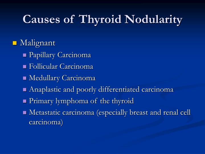 Causes of Thyroid Nodularity