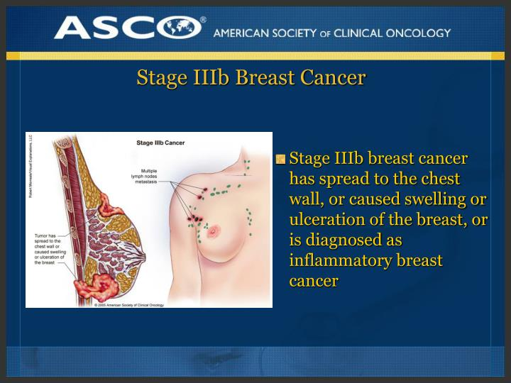 Breast cancer spreading to chest