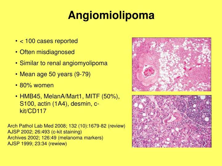 Angiomiolipoma