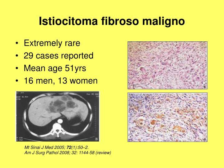 Istiocitoma fibroso maligno