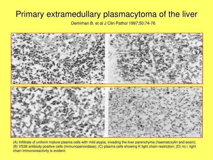 Primary extramedullary plasmacytoma of the liver