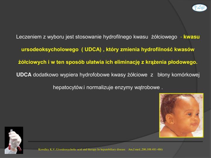Leczeniem z wyboru jest stosowanie hydrofilnego kwasu  żółciowego