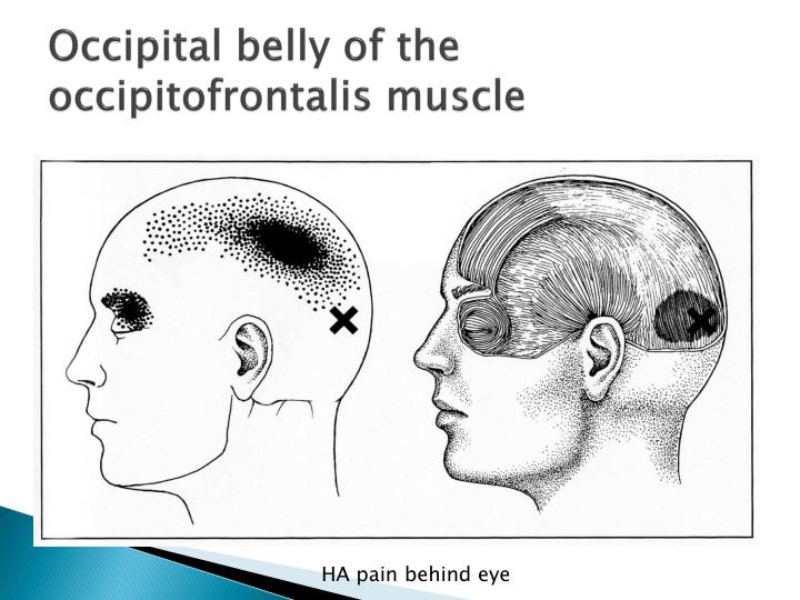 Occipital belly of the