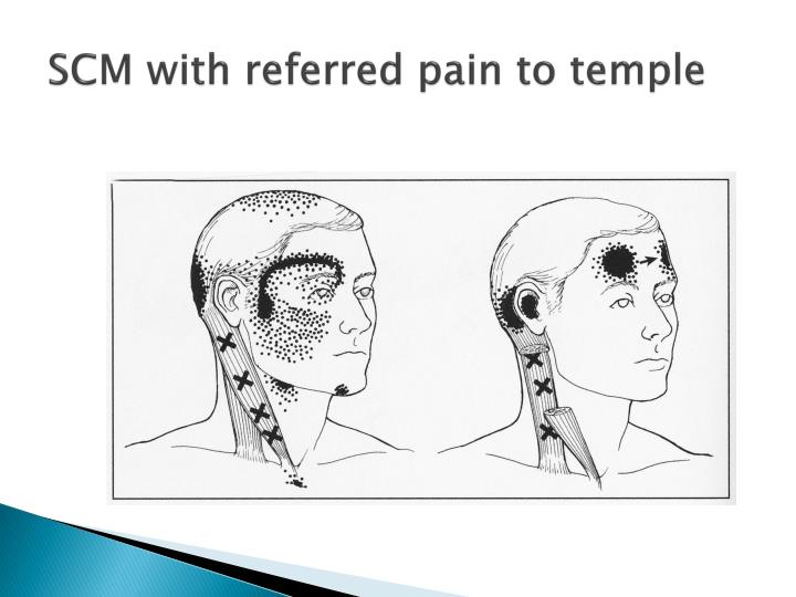 SCM with referred pain to temple