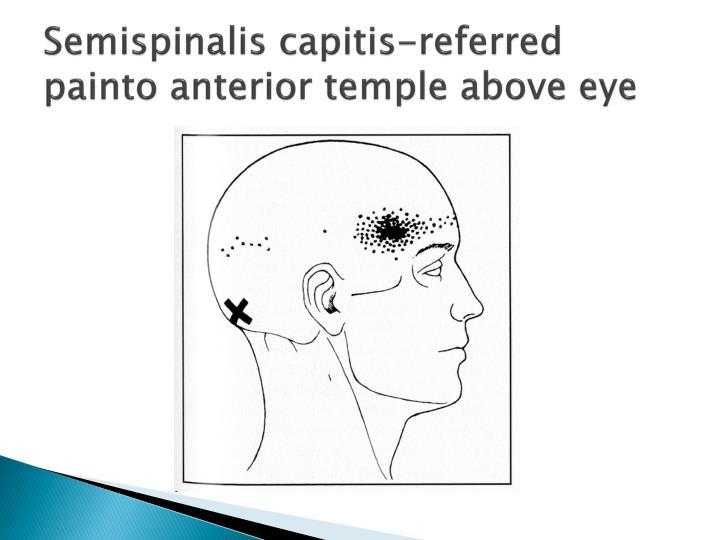 Semispinalis