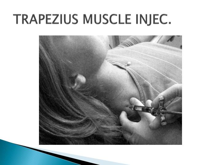 TRAPEZIUS MUSCLE INJEC.
