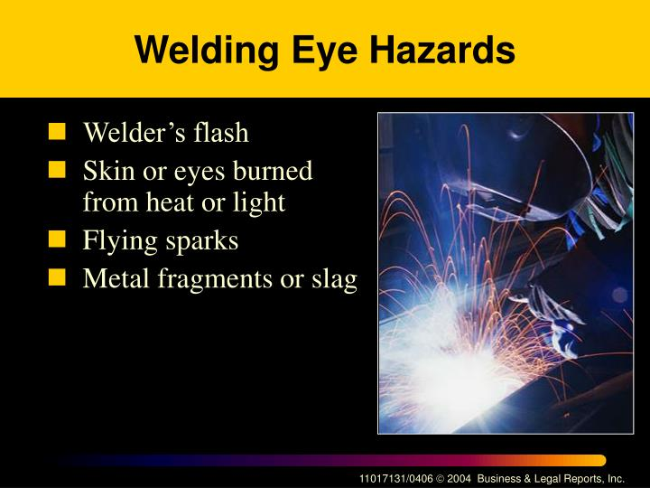 Welding Eye Hazards