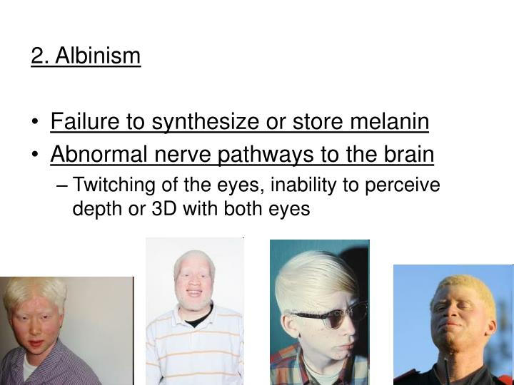 2. Albinism