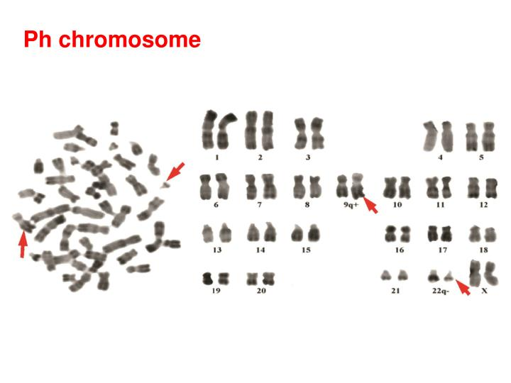 Ph chromosome