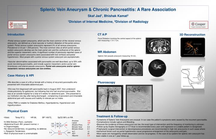 Splenic Vein Aneurysm & Chronic Pancreatitis: A Rare Association