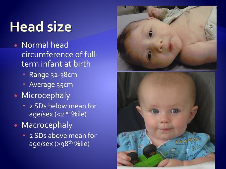 Head size