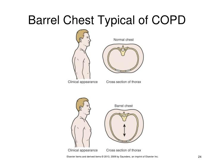 Barrel Chest Typical of COPD