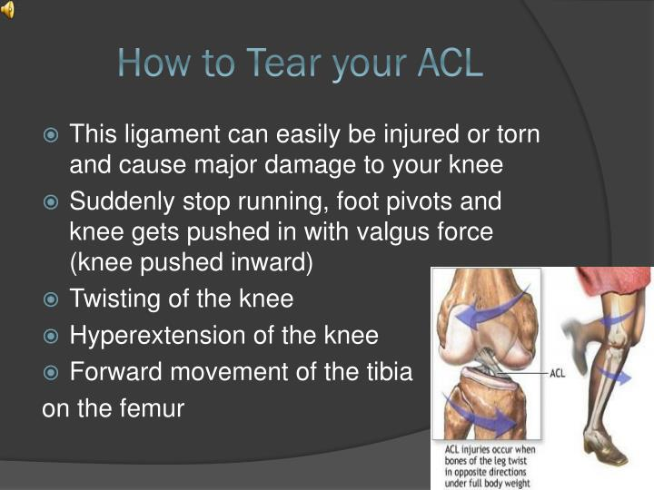 How to tear your acl