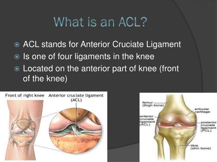 What is an acl