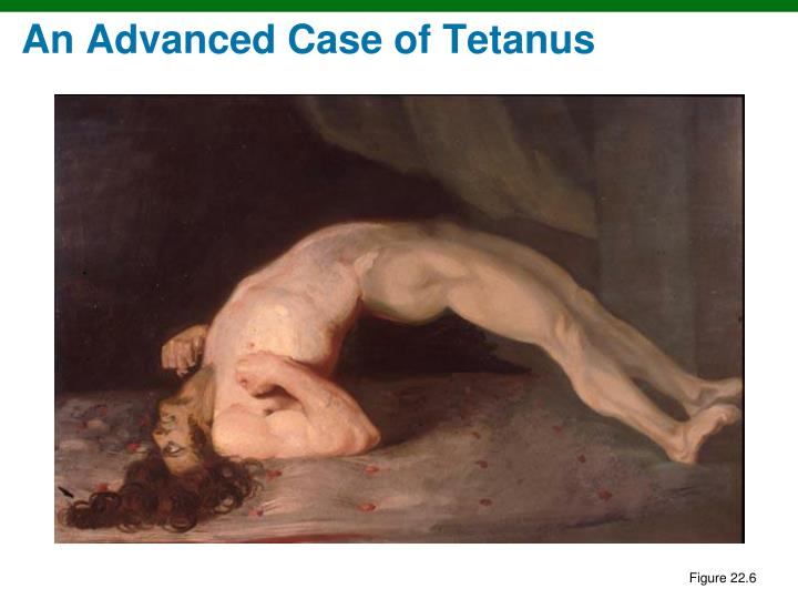 An Advanced Case of Tetanus