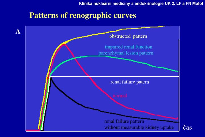 Patterns of renographic curves