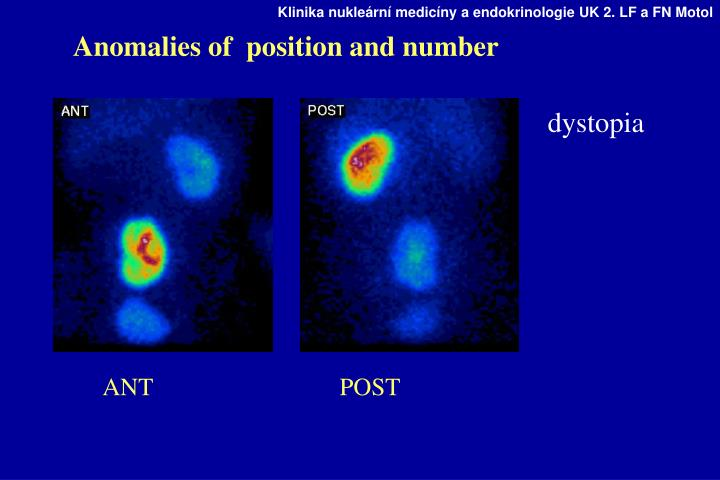Anomalies of  position and number