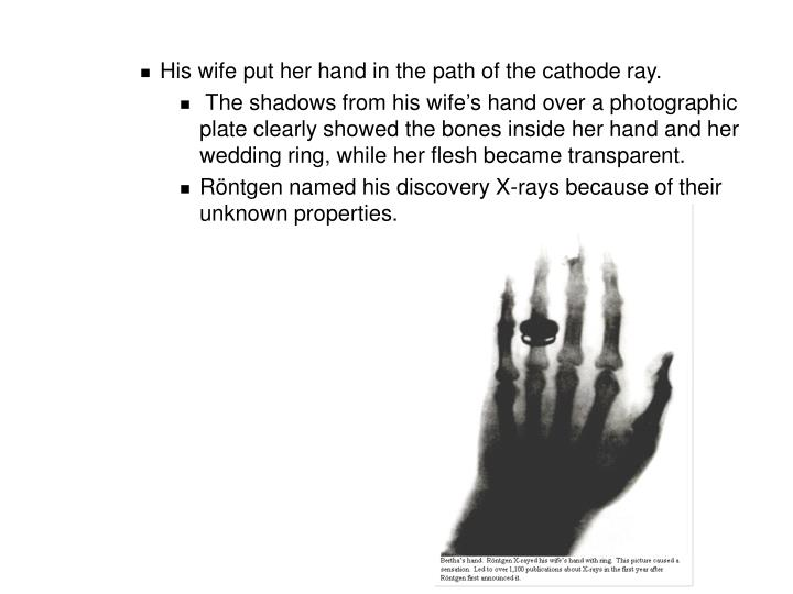 His wife put her hand in the path of the cathode ray.