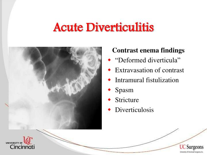 acute diverticulitis essay Essay on diarrhea: what are its causes, symptoms and prevention  acute gastroenteritis (b) chronic causes 1 acute gastroenteritis.